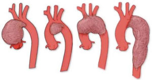胸部大動脈瘤とは?