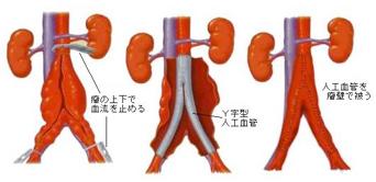 腹部大動脈瘤とは?