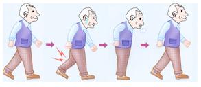 症状~フォンテイン分類〈Ⅱ度〉間歇性跛行