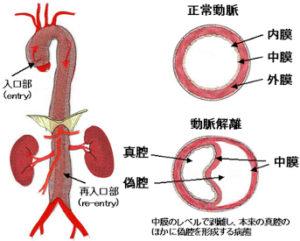 急性大動脈解離(解離性大動脈瘤)