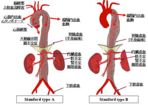 急性動脈解離の病態