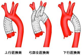 動脈 解離 症状