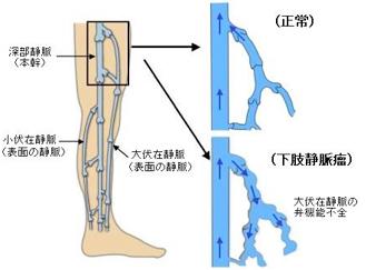 下肢静脈瘤の原因