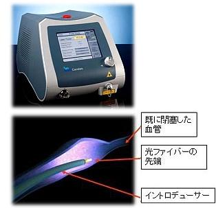 切らずに治す静脈瘤治療 血管内レーザー照射術(ELVeSレーザー治療)