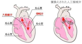 心臓弁膜症の外科的治療