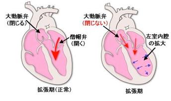 大動脈弁閉鎖不全症