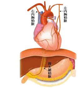 バイパスに用いる血管について