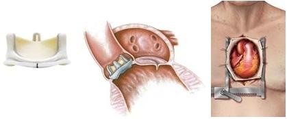 開胸による大動脈弁置換術