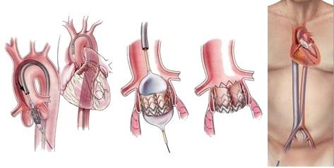 大腿動脈からのアプローチによるTAVI