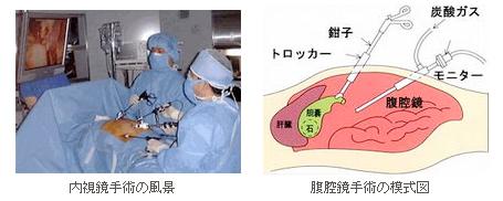 内視鏡下外科手術とは