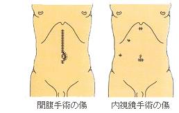 内視鏡下手術の利点と欠点