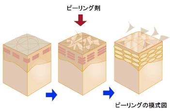 ピーリング模式図